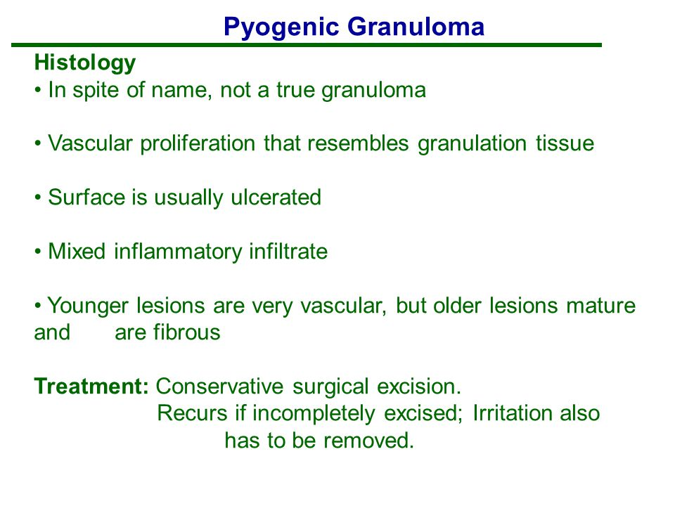 Pyogenic Granuloma Histology In spite of name, not a true granuloma