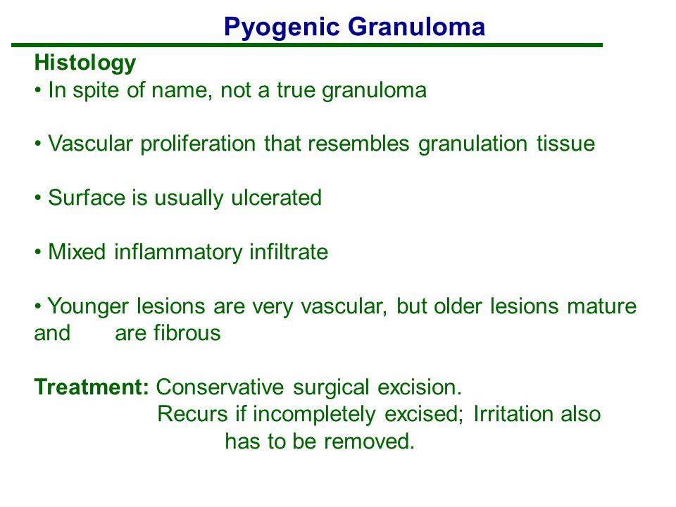 Pyogenic Granuloma Histology In spite of name, not a true granuloma