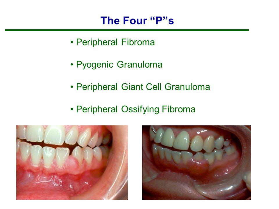 The Four P s Peripheral Fibroma Pyogenic Granuloma