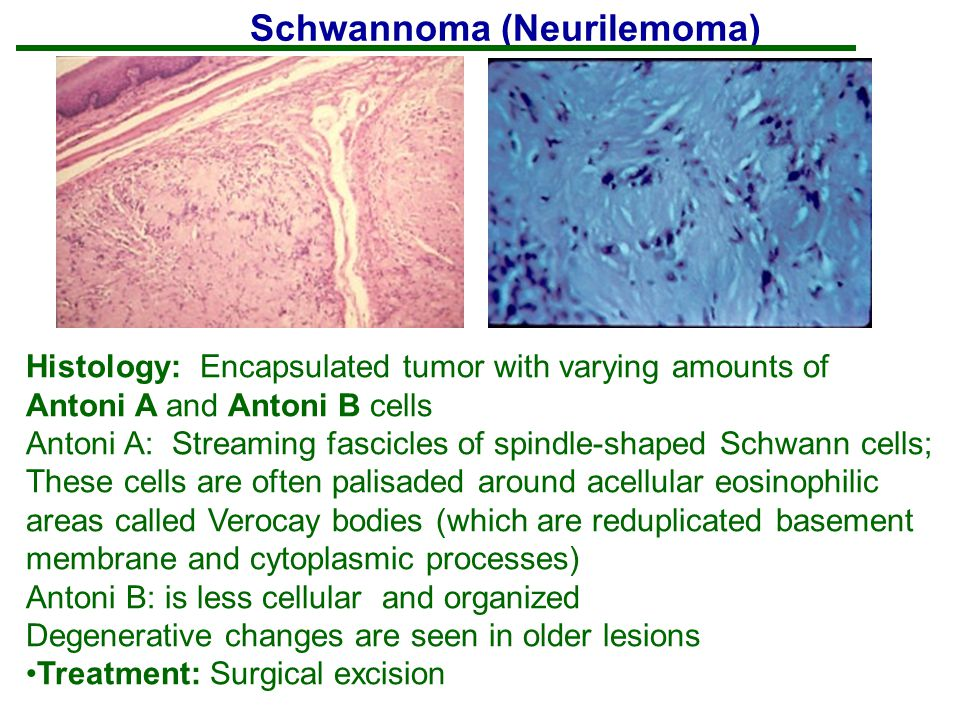 Schwannoma (Neurilemoma)