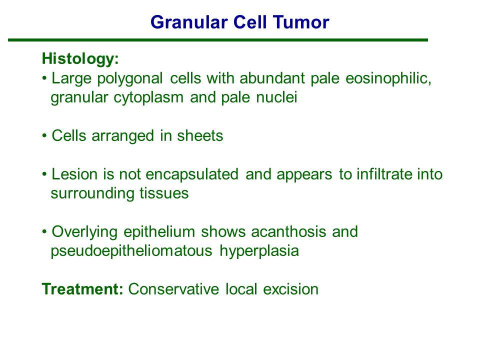 Granular Cell Tumor Histology:
