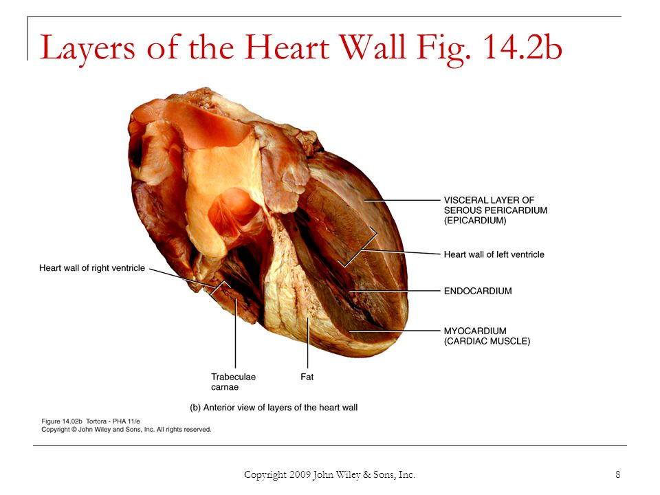 Layers of the Heart Wall Fig. 14.2b