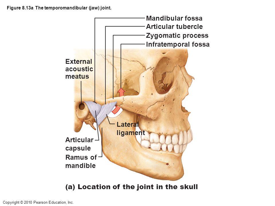 Figure 8.13a The temporomandibular (jaw) joint.