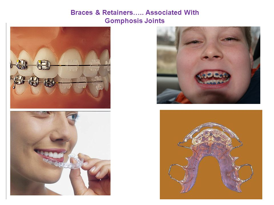 Braces & Retainers….. Associated With
