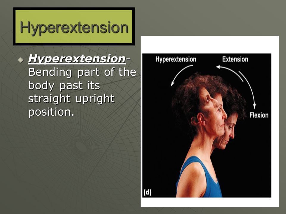 Hyperextension Hyperextension- Bending part of the body past its straight upright position.