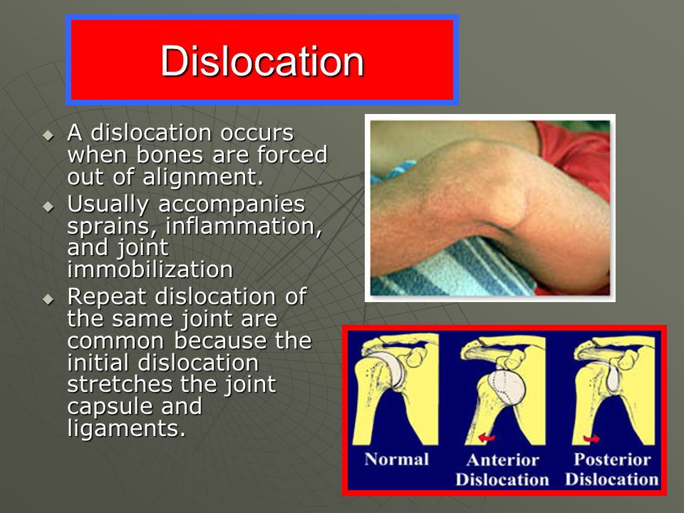 Dislocation A dislocation occurs when bones are forced out of alignment. Usually accompanies sprains, inflammation, and joint immobilization.