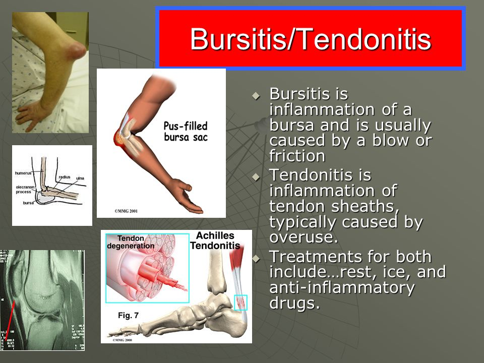 Bursitis/Tendonitis Bursitis is inflammation of a bursa and is usually caused by a blow or friction.