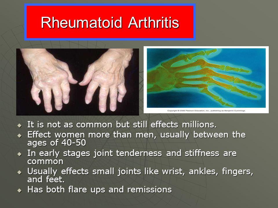 Rheumatoid Arthritis It is not as common but still effects millions.