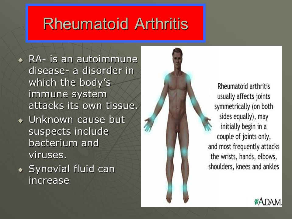Rheumatoid Arthritis RA- is an autoimmune disease- a disorder in which the body's immune system attacks its own tissue.