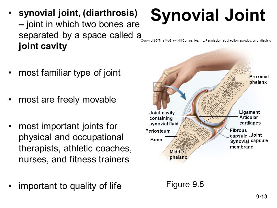 Synovial Joint synovial joint, (diarthrosis) – joint in which two bones are separated by a space called a joint cavity.