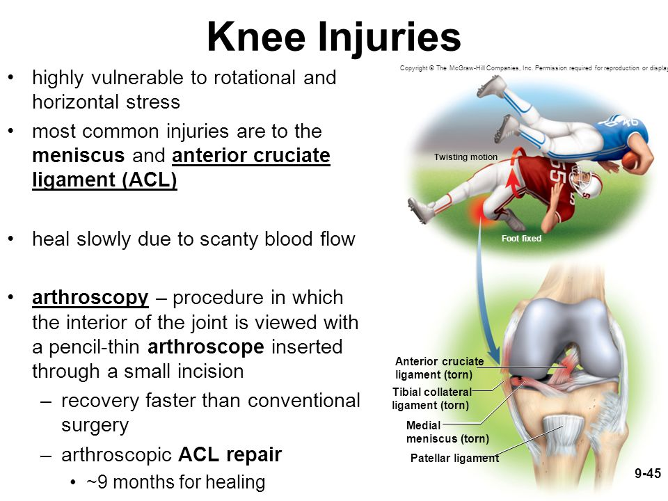 Knee Injuries highly vulnerable to rotational and horizontal stress