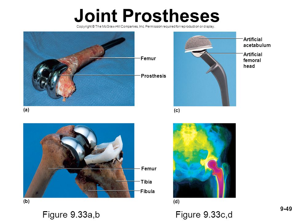 Joint Prostheses Figure 9.33a,b Figure 9.33c,d 9-49 Artificial