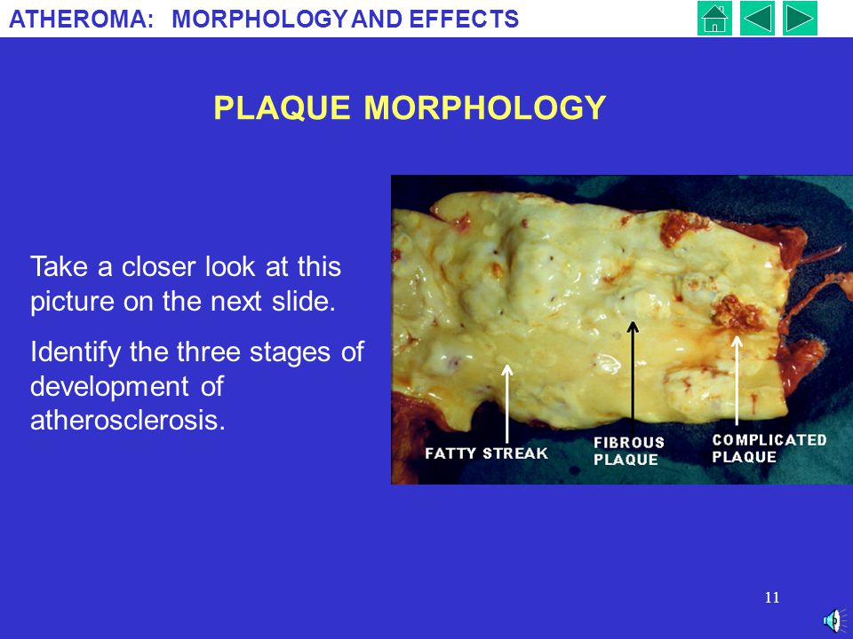 PLAQUE MORPHOLOGY Take a closer look at this picture on the next slide.