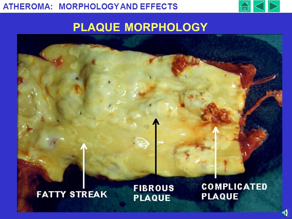 PLAQUE MORPHOLOGY