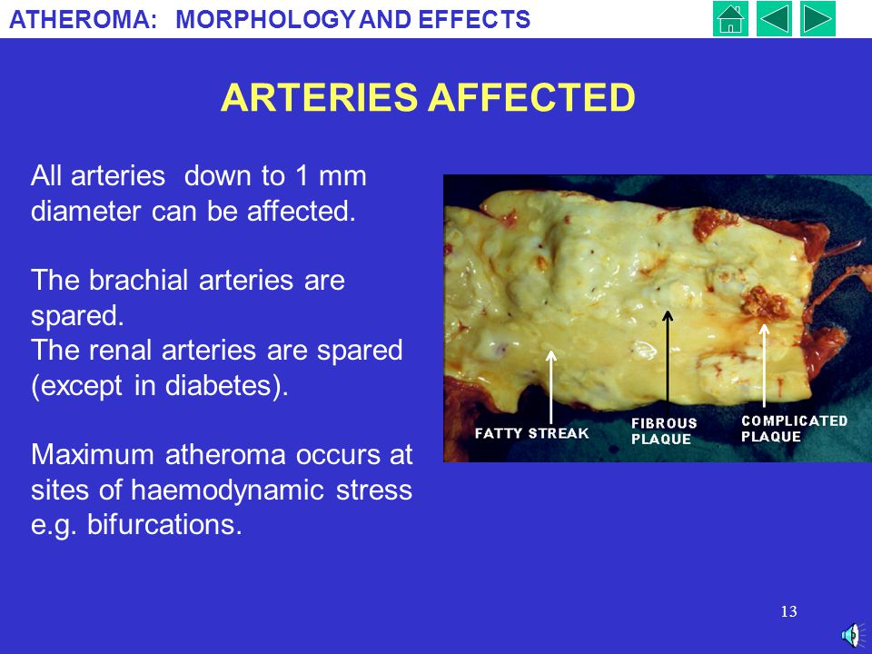 ARTERIES AFFECTED All arteries down to 1 mm diameter can be affected.
