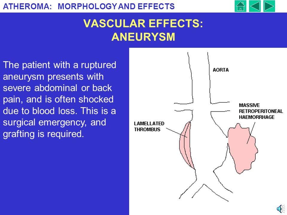 VASCULAR EFFECTS: ANEURYSM