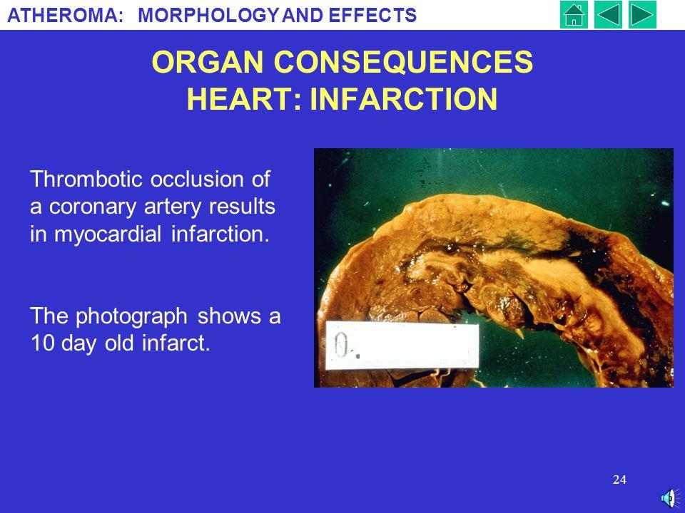 ORGAN CONSEQUENCES HEART: INFARCTION