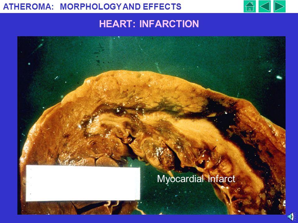 HEART: INFARCTION Myocardial infarct