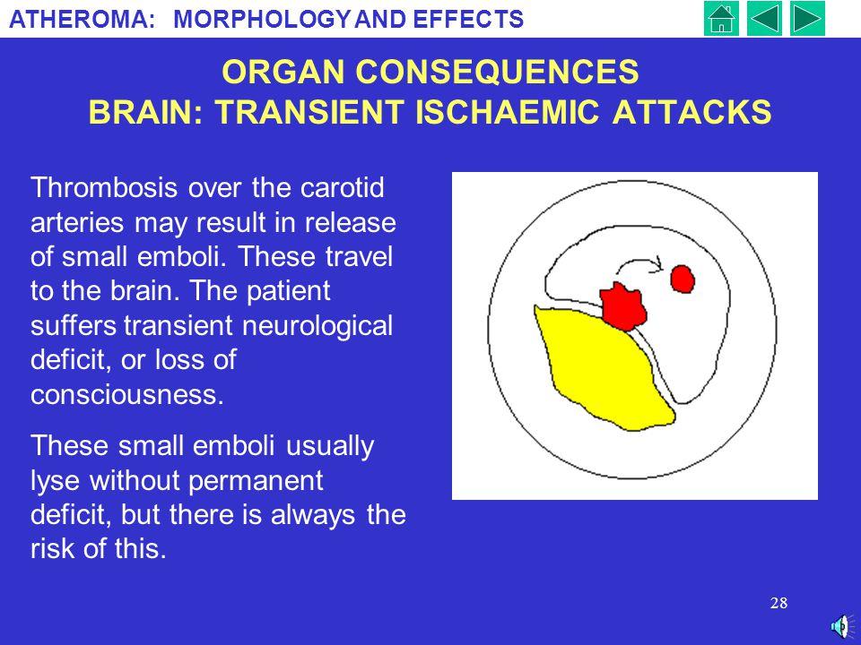 ORGAN CONSEQUENCES BRAIN: TRANSIENT ISCHAEMIC ATTACKS