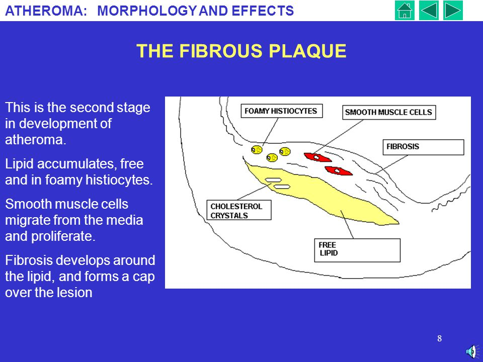 THE FIBROUS PLAQUE This is the second stage in development of atheroma. Lipid accumulates, free and in foamy histiocytes.