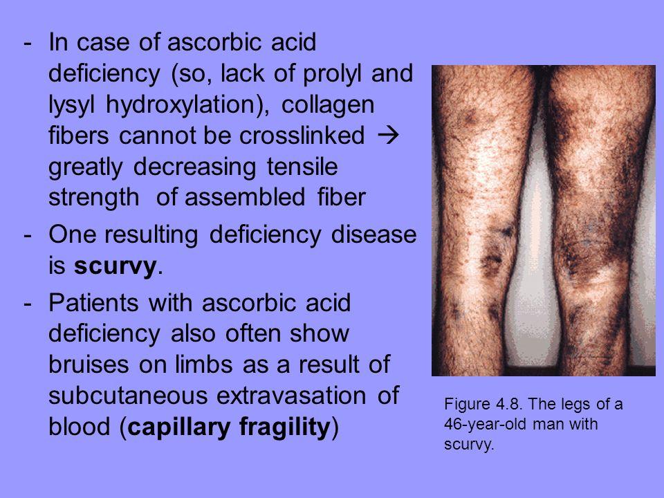 One resulting deficiency disease is scurvy.