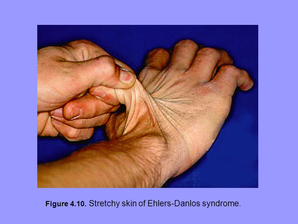 Figure 4.10. Stretchy skin of Ehlers-Danlos syndrome.