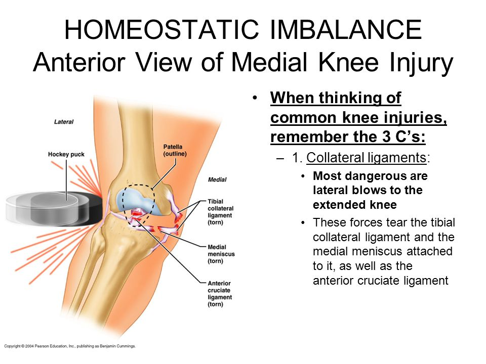 HOMEOSTATIC IMBALANCE Anterior View of Medial Knee Injury
