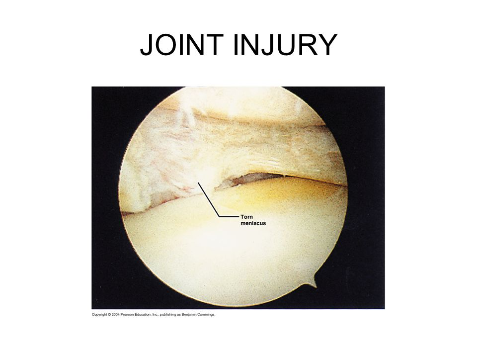 JOINT INJURY