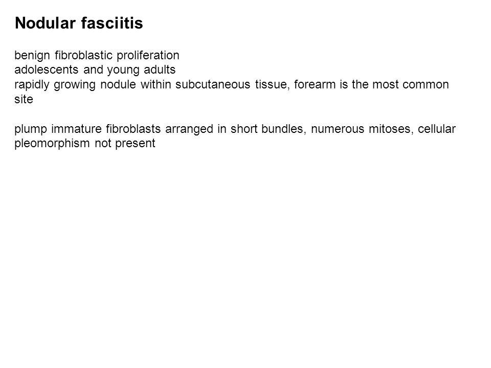 Nodular fasciitis benign fibroblastic proliferation