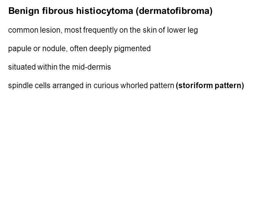 Benign fibrous histiocytoma (dermatofibroma)