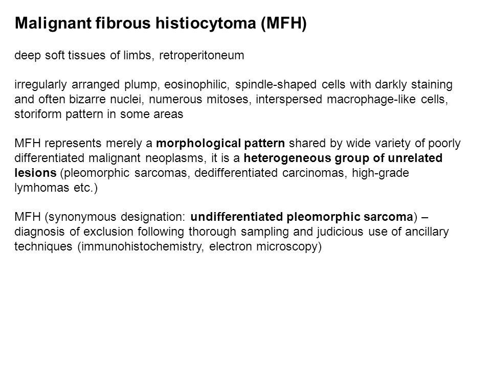 Malignant fibrous histiocytoma (MFH)