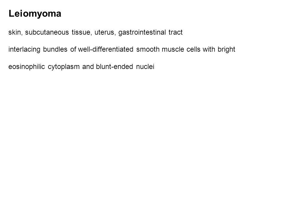 Leiomyoma skin, subcutaneous tissue, uterus, gastrointestinal tract