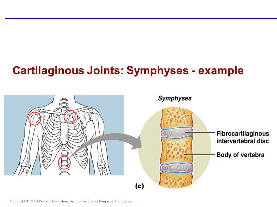Cartilaginous Joints: Symphyses - example