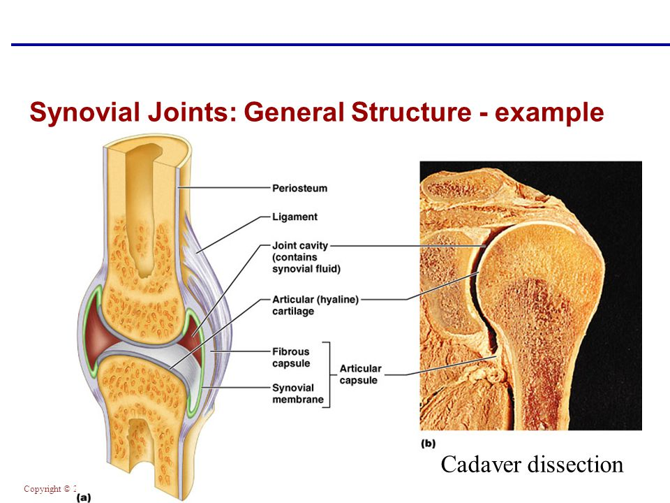 Synovial Joints: General Structure - example