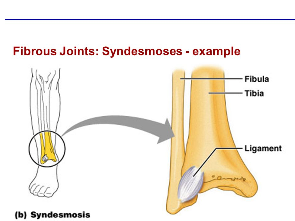 Fibrous Joints: Syndesmoses - example