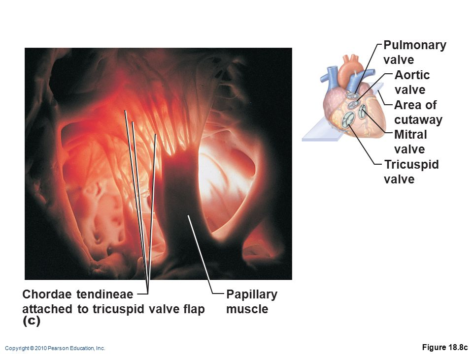 attached to tricuspid valve flap Papillary muscle
