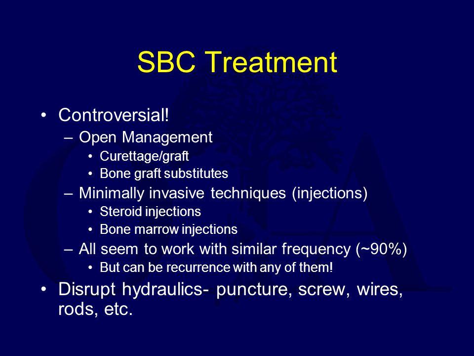 SBC Treatment Controversial!