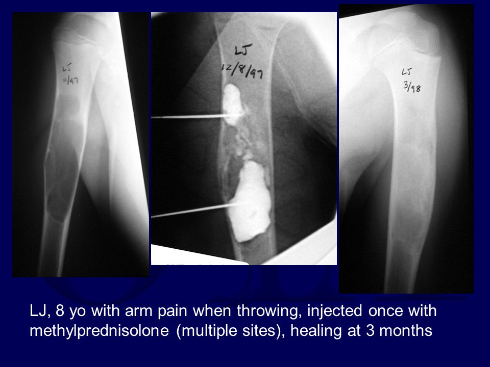 LJ, 8 yo with arm pain when throwing, injected once with methylprednisolone (multiple sites), healing at 3 months