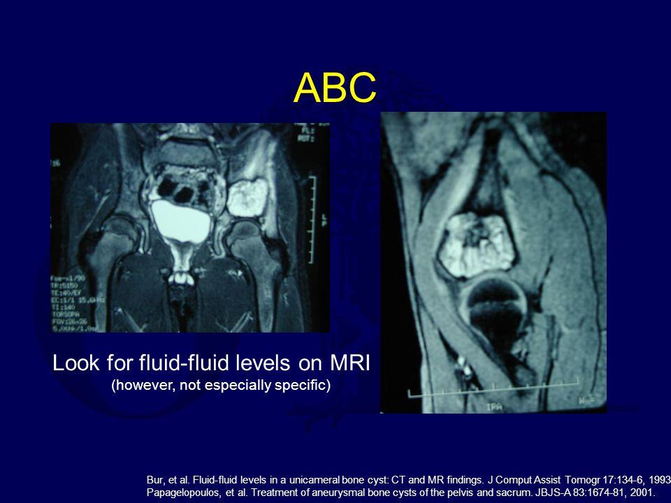 ABC Look for fluid-fluid levels on MRI