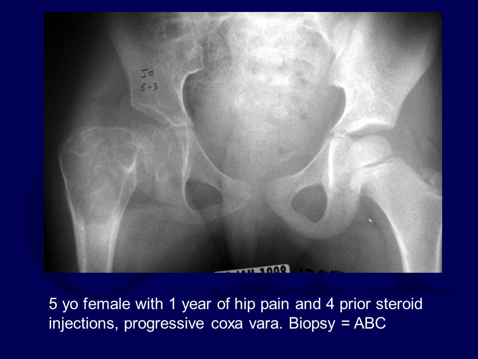 5 yo female with 1 year of hip pain and 4 prior steroid injections, progressive coxa vara.