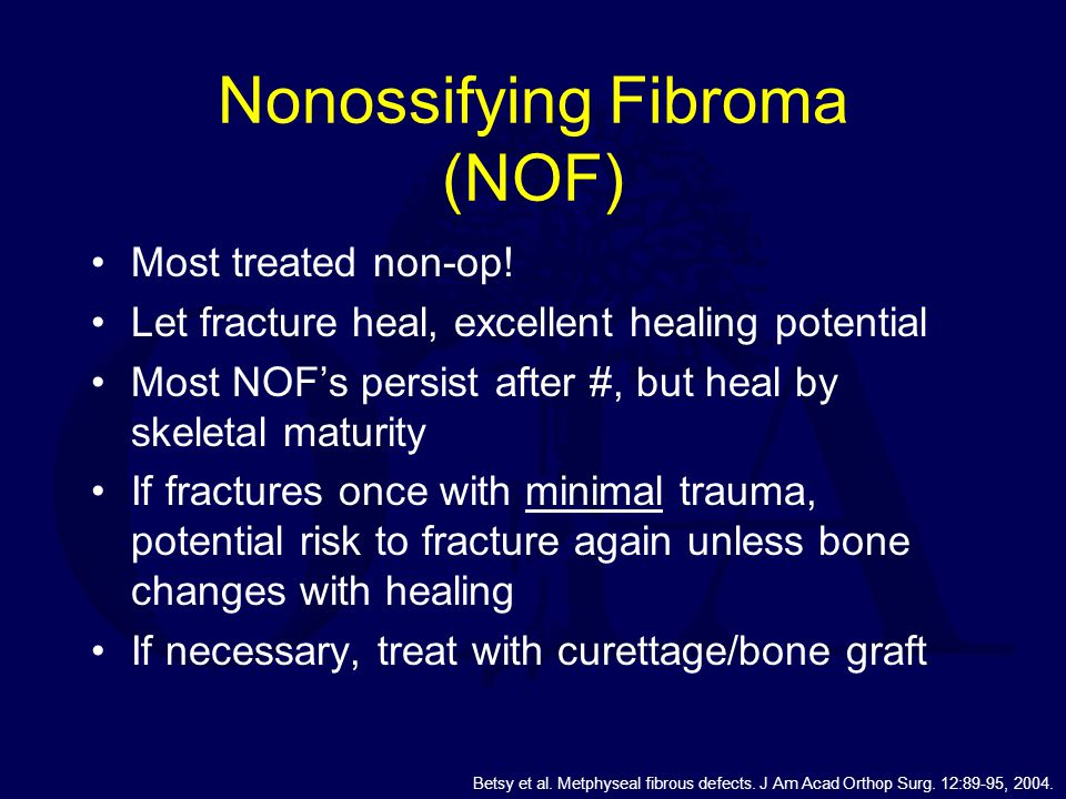Nonossifying Fibroma (NOF)