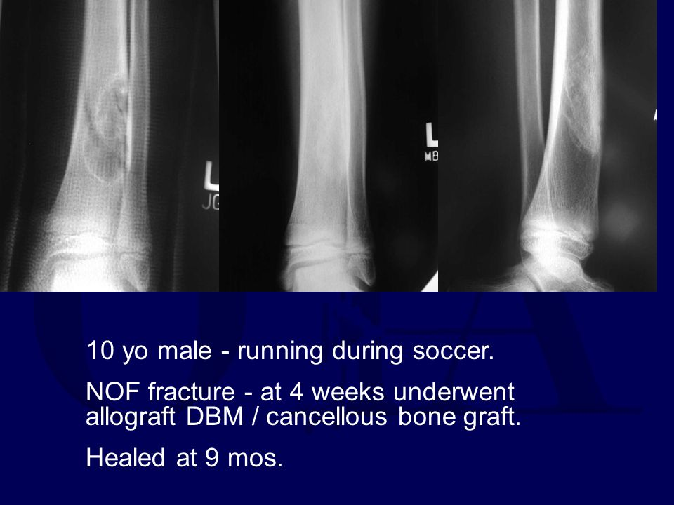 10 yo male - running during soccer.