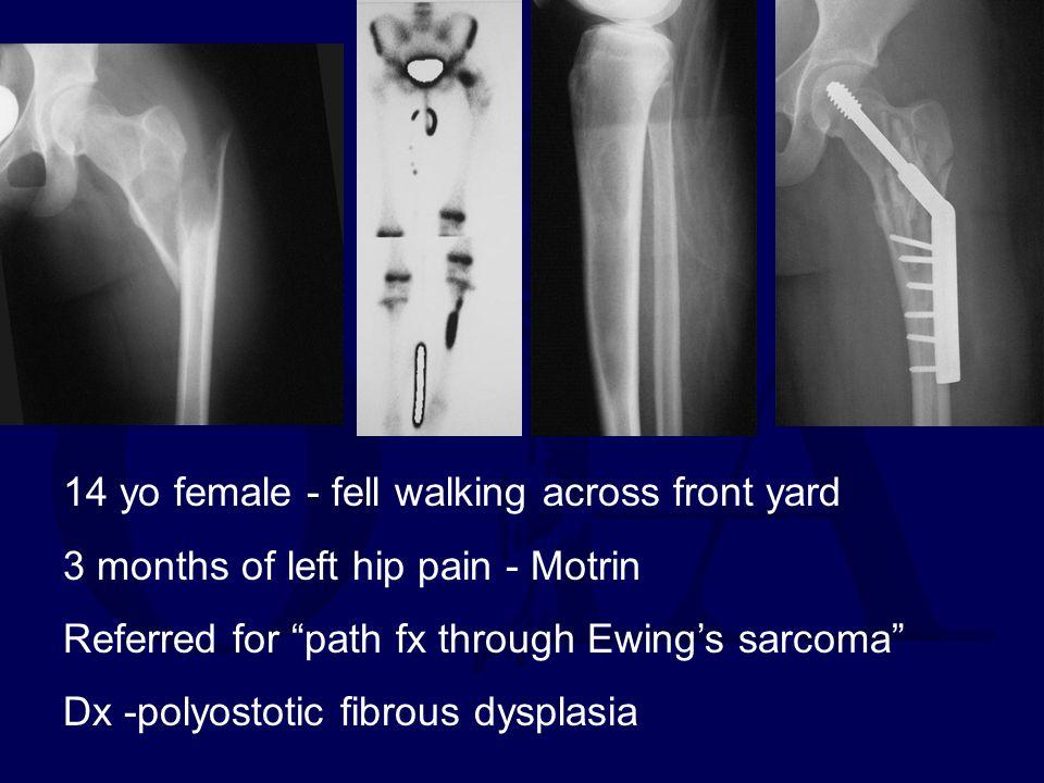14 yo female - fell walking across front yard