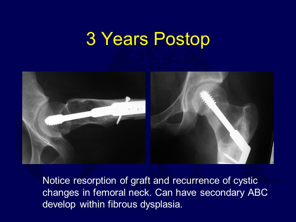 3 Years Postop Notice resorption of graft and recurrence of cystic changes in femoral neck.