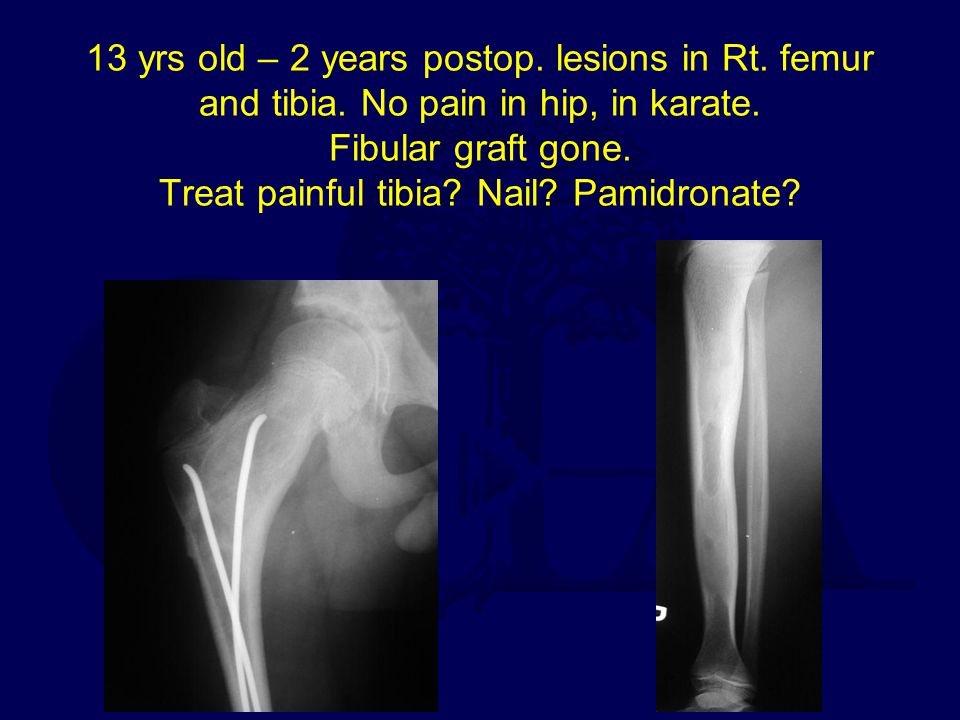 13 yrs old – 2 years postop. lesions in Rt. femur and tibia