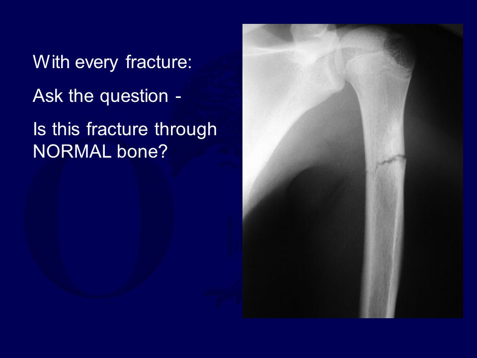 With every fracture: Ask the question - Is this fracture through NORMAL bone