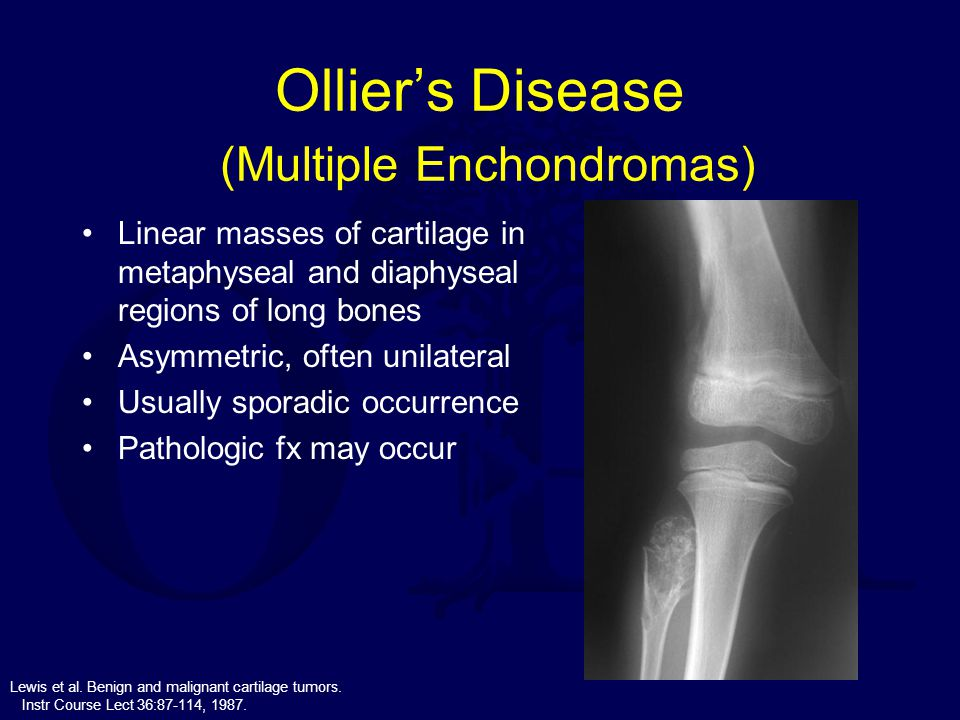 Ollier's Disease (Multiple Enchondromas)