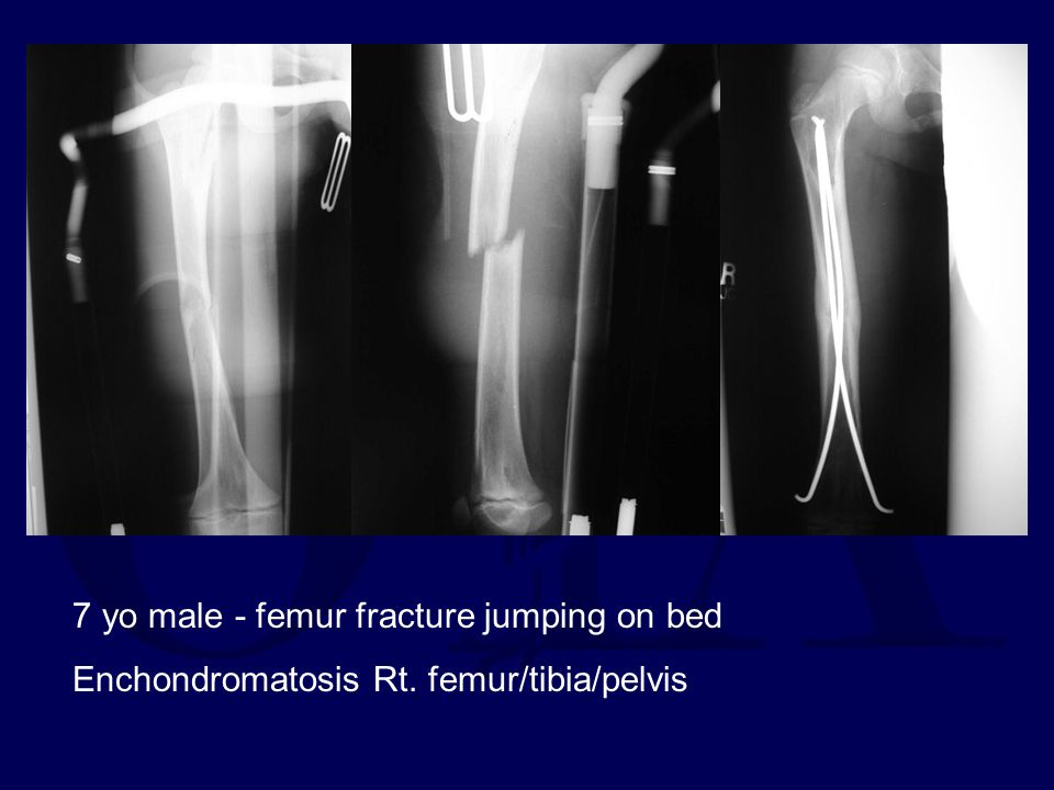 7 yo male - femur fracture jumping on bed