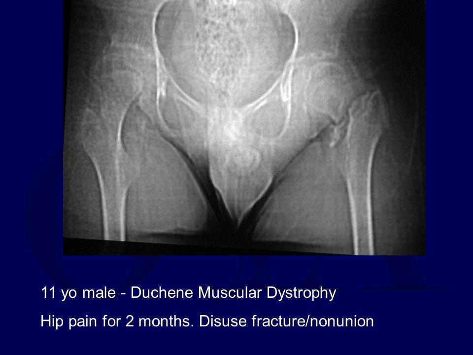 11 yo male - Duchene Muscular Dystrophy