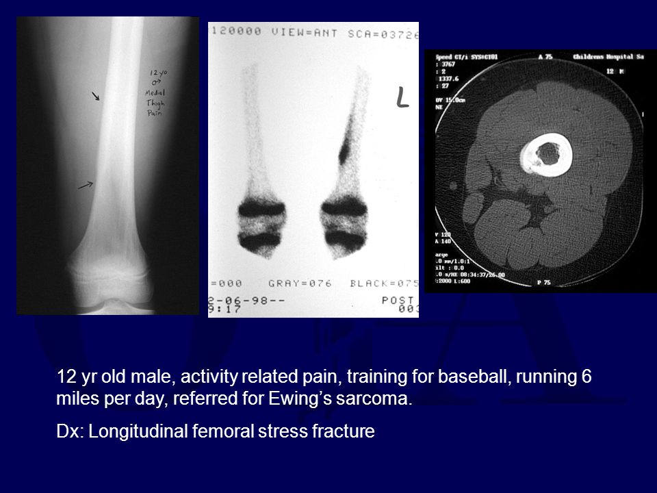 12 yr old male, activity related pain, training for baseball, running 6 miles per day, referred for Ewing's sarcoma.